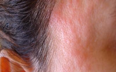 Dermatite – prováveis causas